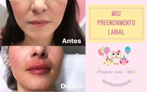 Meu preenchimento labial – Antes, durante e depois